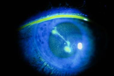 CKS Clinical Solutions - Superficial corneal injury