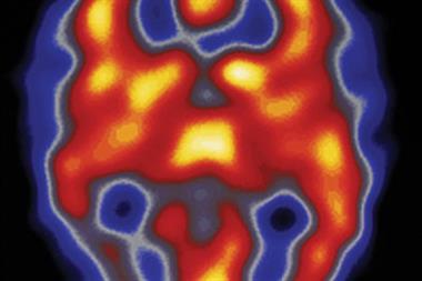 Journals Watch: Migraine, antibiotics and PSA