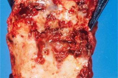 New vascular disease target found