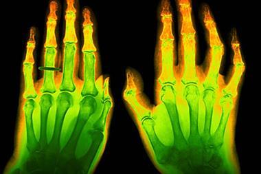 GI risk in arthritis treatment 'varies across pain therapies'