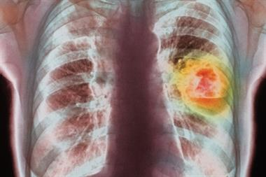 Lung cancer missed as GPs unable to access X-rays