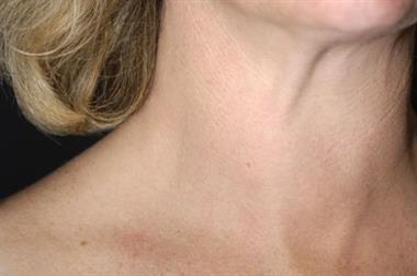 The basics - Hyperthyroidism