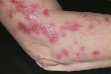 Clinical images: Bacterial infections