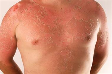 The management of sunburn