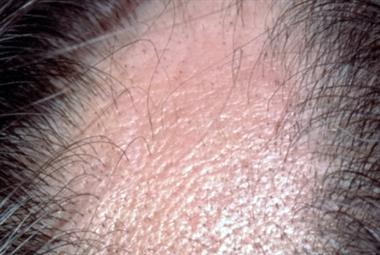 Differential diagnoses: Alopecia