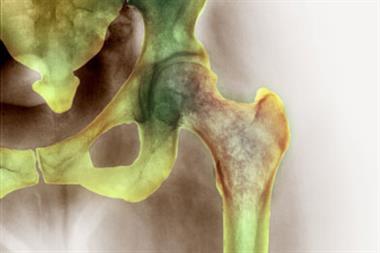 Blocking serotonin key to potential bone treatment