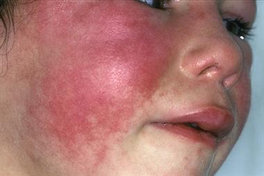 Exclusive: GPs on alert as scarlet fever levels highest since 1982