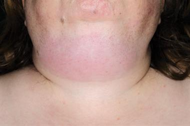 Pictorial case study - Submandibular swelling