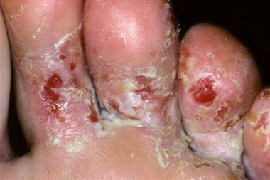 Pictorial case study - A fungal foot infection