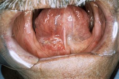 Identifying oral cancer