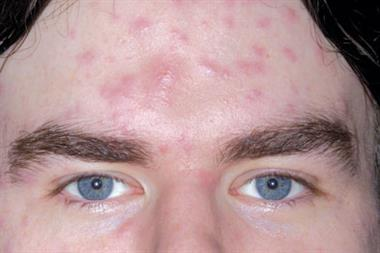 Clinical images: Adult faces
