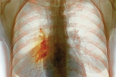 Non-small cell lung cancer - Clinical review