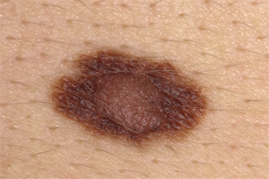 Differential diagnoses - Pigmented skin lesions