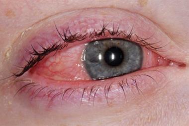 Expert Opinion Diagnosing Thyroid Eye Disease Gponline