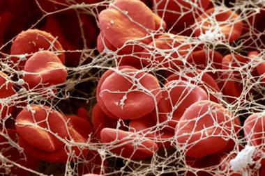 Prostate cancer 'increases blood clot risk'