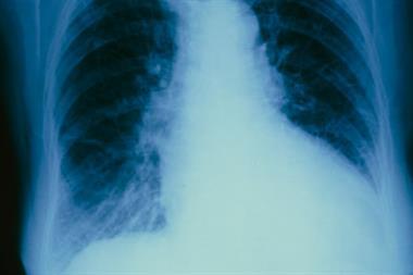 Journals Watch - Heart failure, smoking and diabetes
