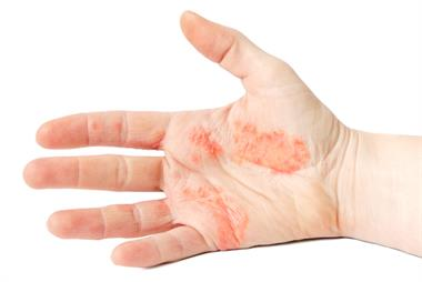 Management of contact dermatitis