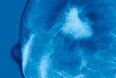 Doubts over breast cancer screening in elderly
