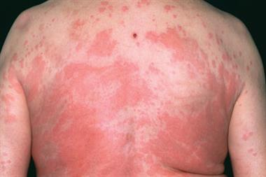 Pictorial case study - A reaction to penicillin