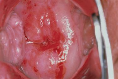Postcoital bleeding - red flag symptoms