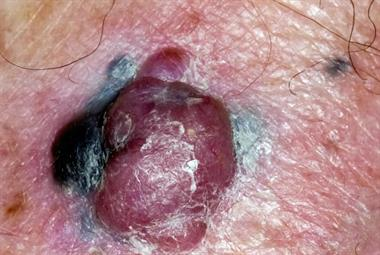 Changing moles - red flag symptoms