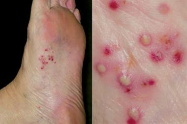Differential diagnoses - Skin conditions of the feet