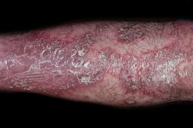 Differential diagnoses: Psoriasis