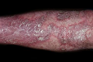 Psoriasis: differential diagnosis