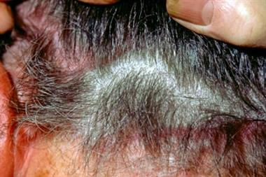Diagnosing scalp conditions
