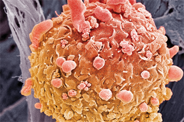 Skin cancer biopsies 'safe in primary care'