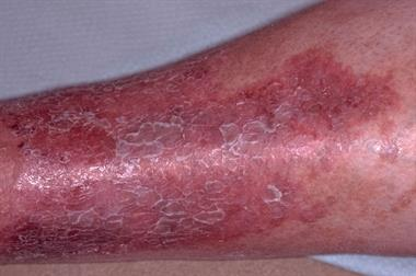 Differential diagnoses - Lower leg eczema