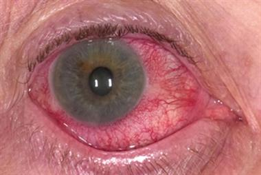 Differential diagnoses - Conjunctivitis and iritis in pictures