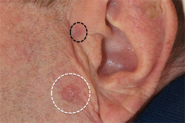 Basal cell carcinoma - clinical review