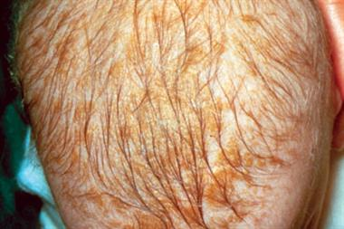 Picture case - Cradle cap