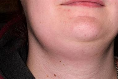 颈部淋巴结病——危险症状beplay官网登录被盗