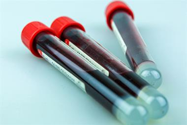 GPs forced to spend hours cancelling tests amid 'perilous' blood tube shortage