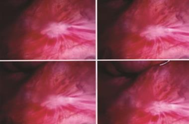 Diagnosis and treatment of endometriosis
