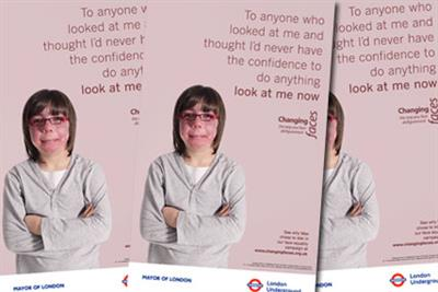 Changing Faces launches campaign to destigmatise facial disfigurement