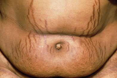 Stretch marks caused by Cushing's syndrome (Photograph: SPL)