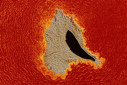Atherosclerosis. Coloured light micrograph of a cross-section through an artery obstructed with atheroma plaque