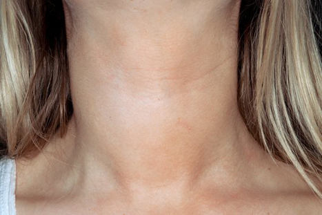 Goitre (swelling) of the neck in a patient with Hashimoto's thyroiditis (Picture: SPL)