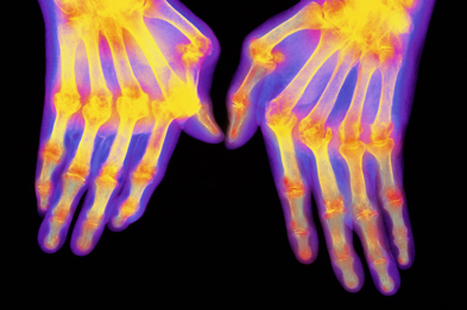 Rheumatoid arthritis is a new domain in the QOF for 2013/14 (Picture: SPL)