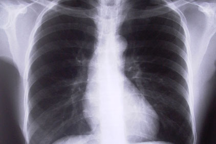 Bell Pottinger: wins DH lung campaign