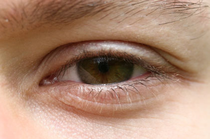 Macular Disease: main cause of blindness