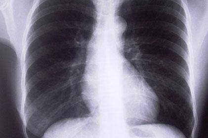 Deep breath: British Lung Foundation