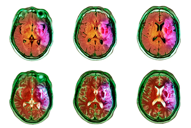 Intracranial haemorrhage should be excluded before use of alteplase. | SCIENCE PHOTO LIBRARY