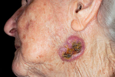 Advanced basal cell carcinoma on the face of an elderly woman | SCIENCE PHOTO LIBRARY