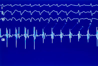 Patients should seek prompt medical attention if symptoms such as syncope or tachyarrhythmia appear during treatment | SCIENCE PHOTO LIBRARY