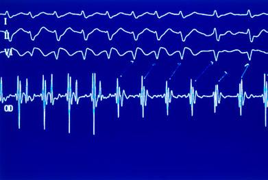 Domperidone Cardiac Warning Mims Online