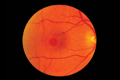 Ophthalmoscope view of the retina of a patient's eye, showing a macular hole | SCIENCE PHOTO LIBRARY